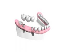 Bridge sur Implants Dentaires Auray