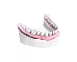 Bridge sur Implants Dentaires