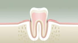 Parodontologie Morbihan